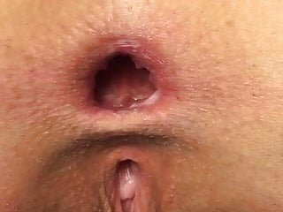 German Gaping Pussy video: Ass gaping